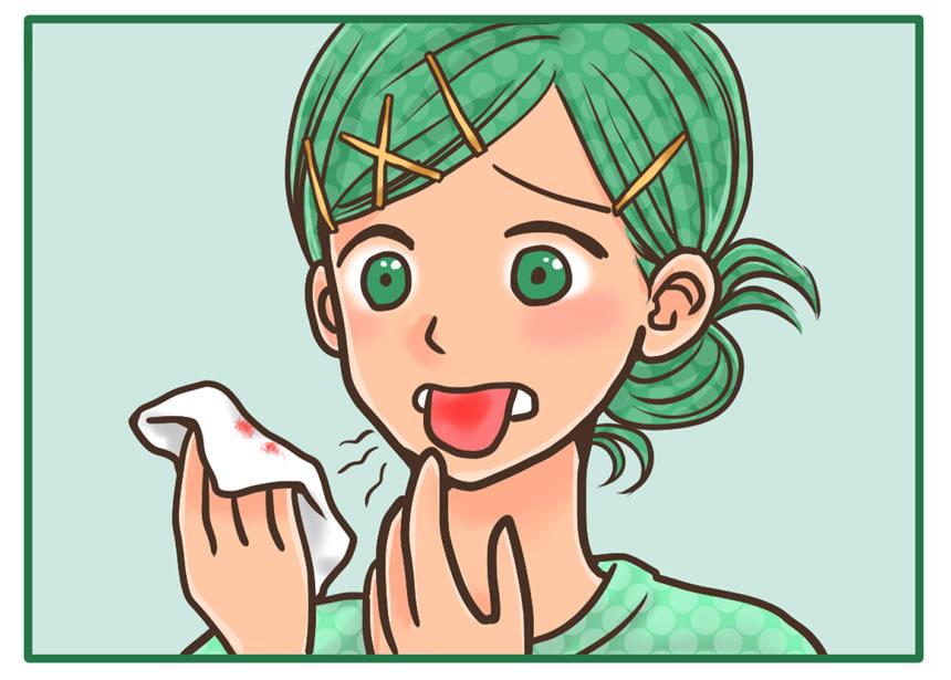 舌苔を取りたい:舌が炎症を起こして傷が入っていた