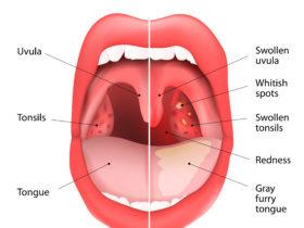 舌苔・臭い玉