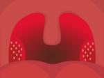 扁桃腺の膿栓(臭い玉)